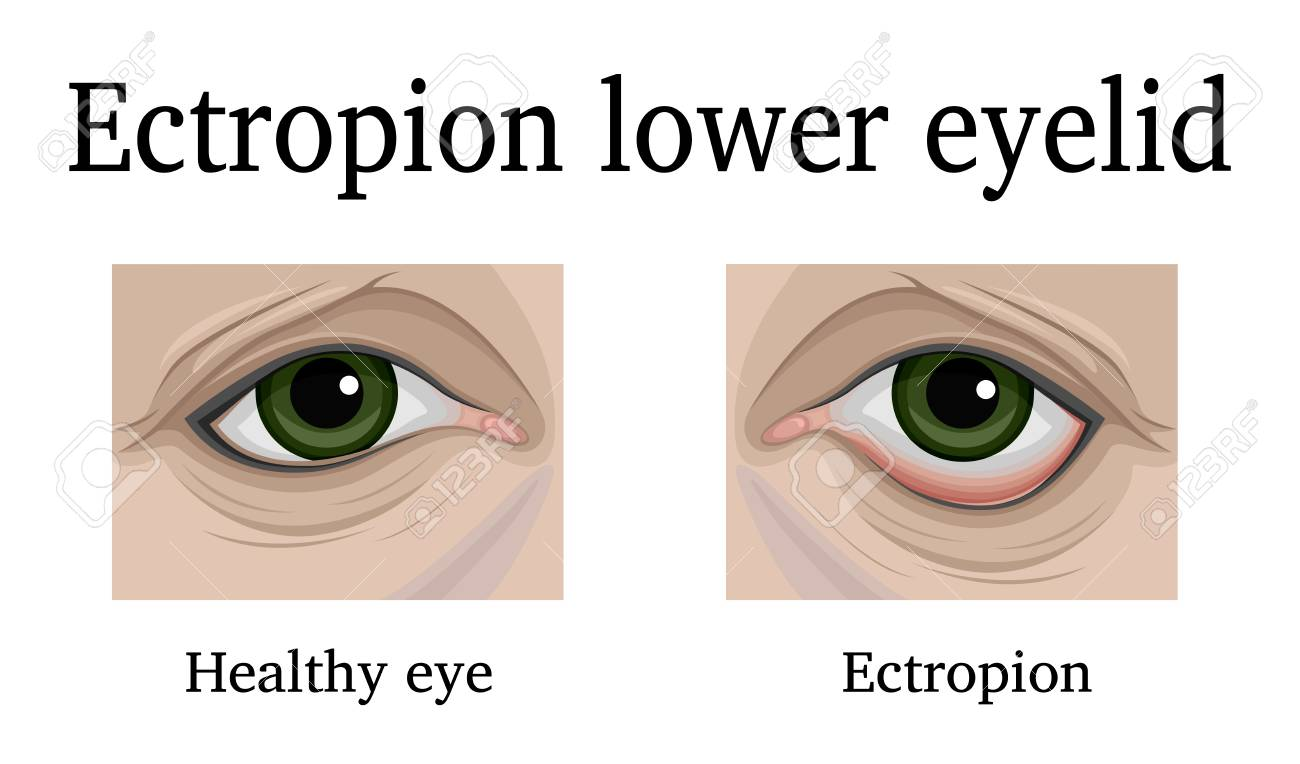 Illustration Ectropion of the lower eyelid. For comparison, a healthy and sore eye is depicted - 90908812