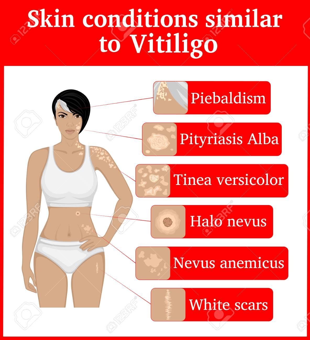 Six skin conditions having an external similarity with Vitiligo, such as Vitiligo. - 97470548