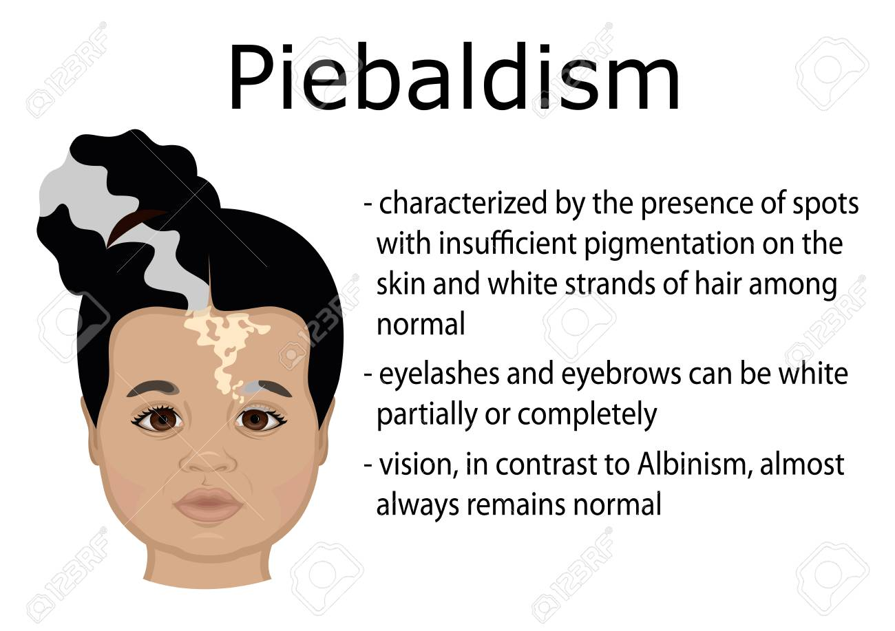Illustration of a little girl with symptoms of Piebaldism - 97797197
