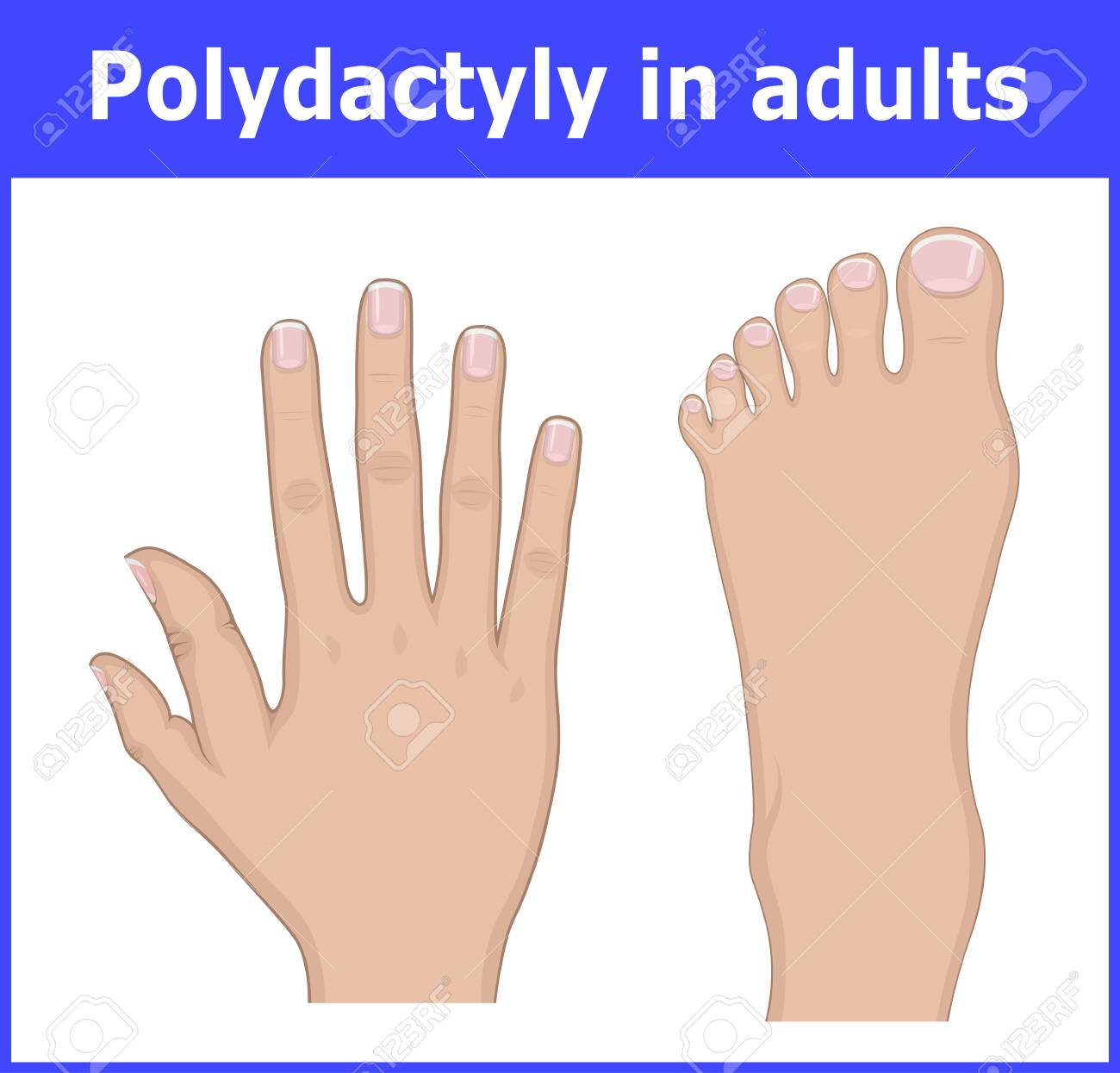 Illustration of Polydactyly of the foot and hands of an adult - 98382470