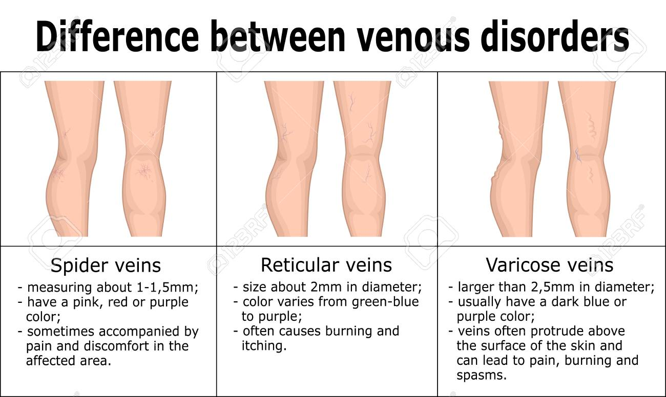 Illustration of difference between venous disorders, such as spider veins, reticular veins and varicose veins. - 115183719