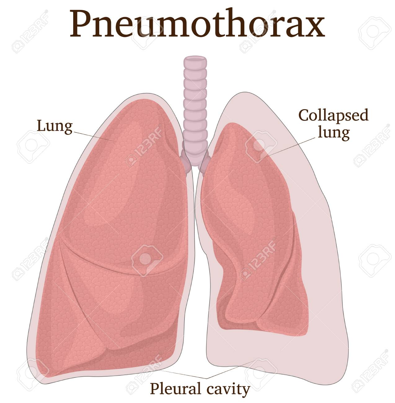 Illustration of the lungs with symptoms of pneumothorax - 127259264