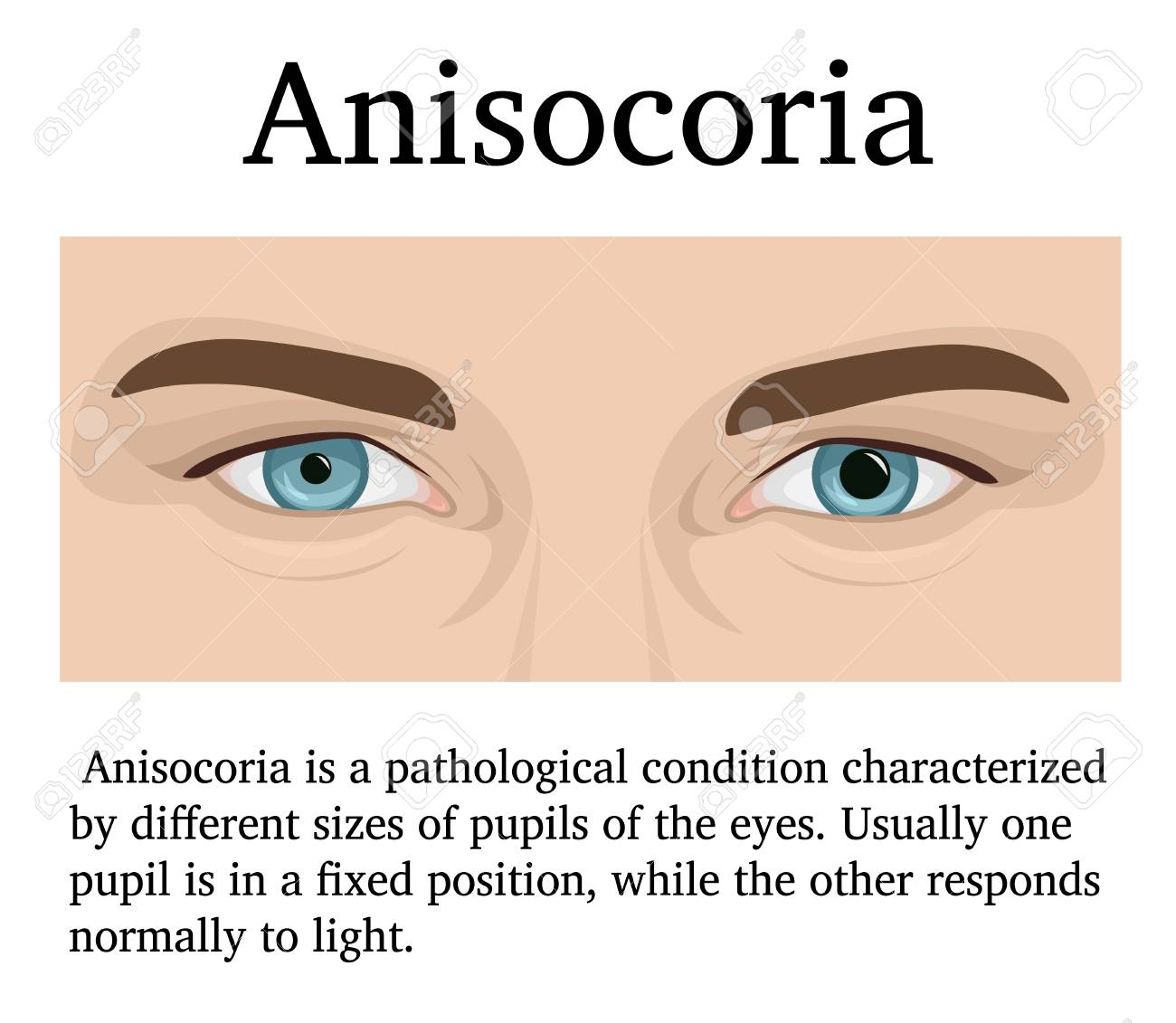 Illustration of a man with symptoms of ophthalmologic disease Anisocoria - 127190809