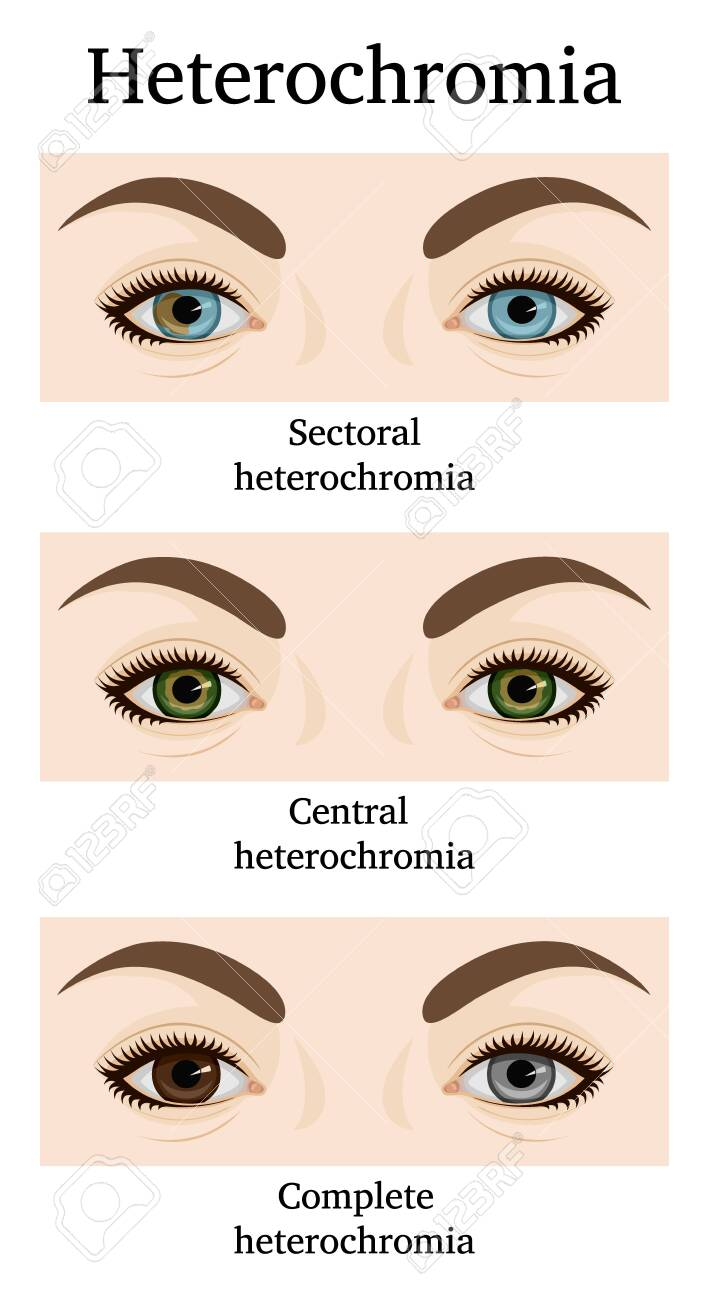 Illustration of three types of heterochromia - partial, central and complete - 142687425