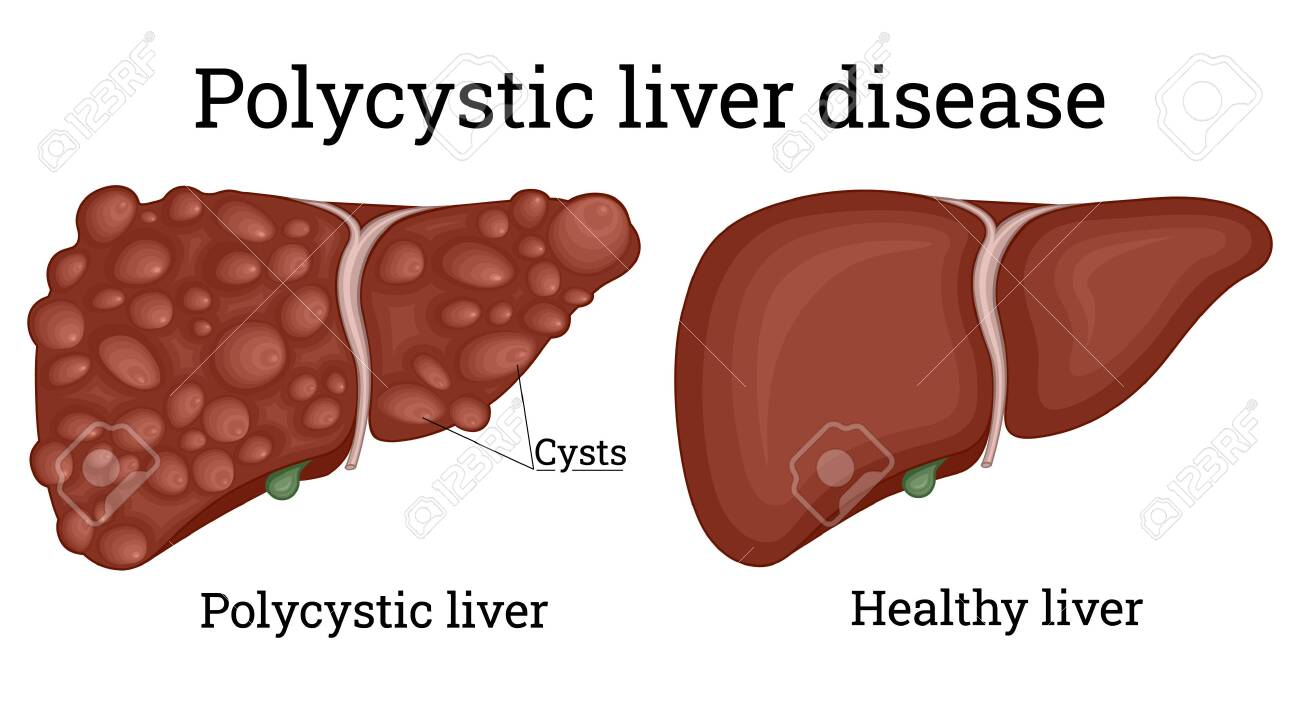 Illustration of a healthy liver and polycystic liver - 151625203