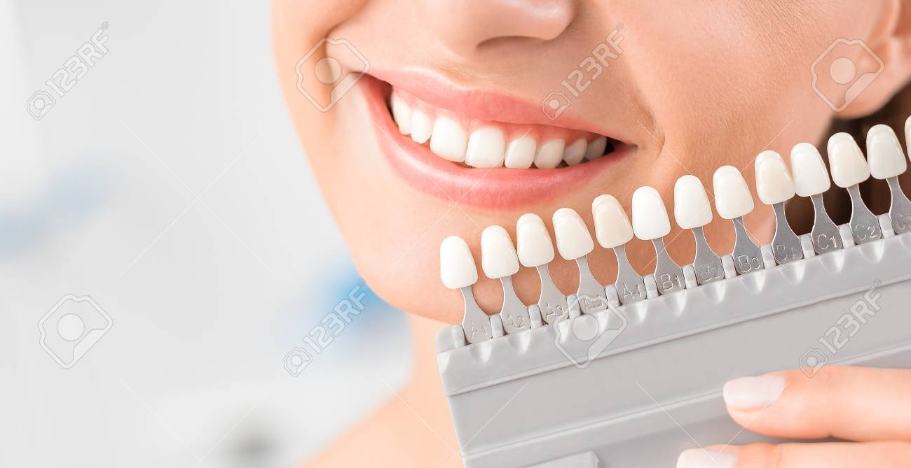 Beautiful smile and white teeth of a young woman. Matching the shades of the implants or the process of teeth whitening. - 89631340