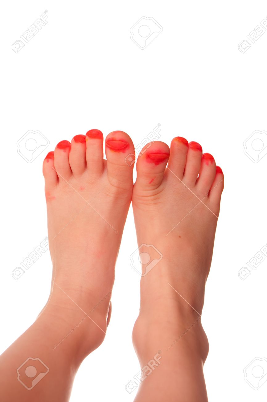 Closeup Of Young Girl\'s Toes That Have Been Painted With Marker ...