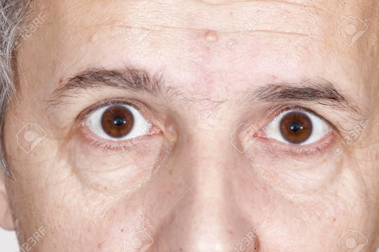 Fermer La Cataracte Sénile Du Cours De L'examen De L'oeil Banque D ...