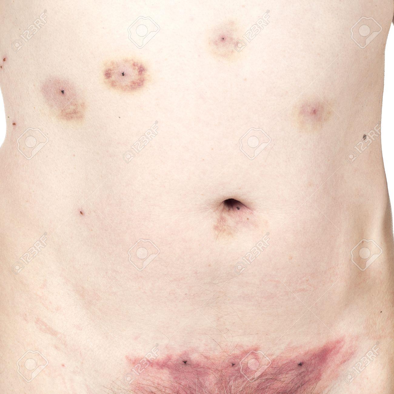 Hämatom Nach Blutegeln über Dem Schambein Entfernt Lizenzfreie Fotos ...