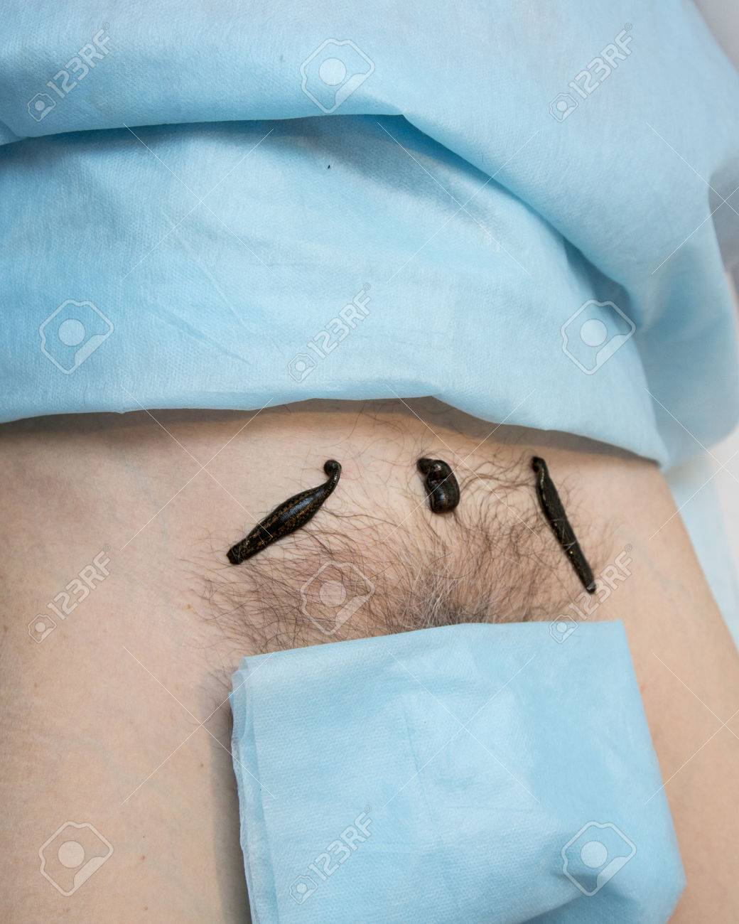Treatment With Leeches Groin Above The Pubic Bone Stock Photo