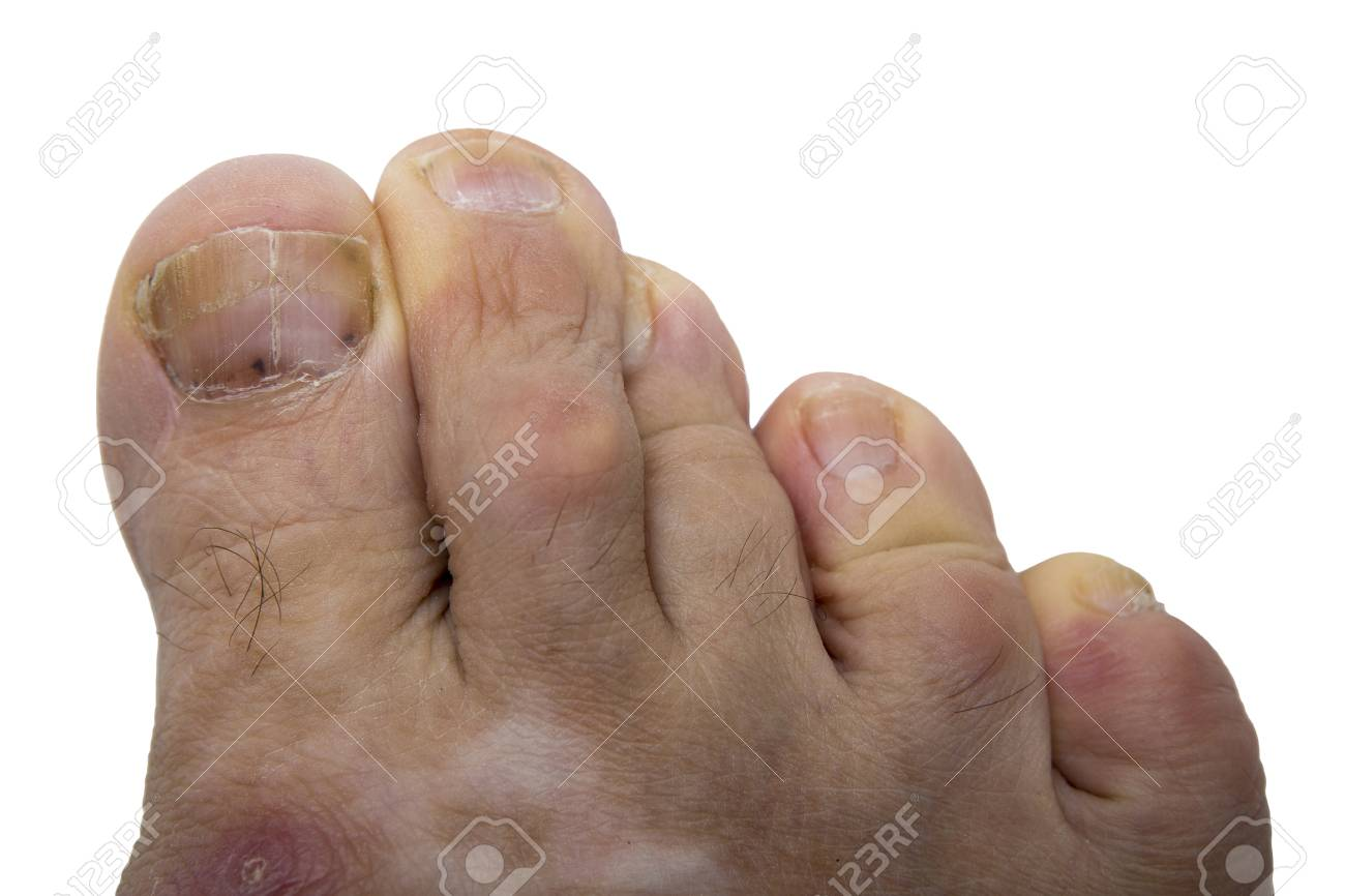 Infección Fúngica En El Dedo Humano. Psoriasis En El Pie De Un ...