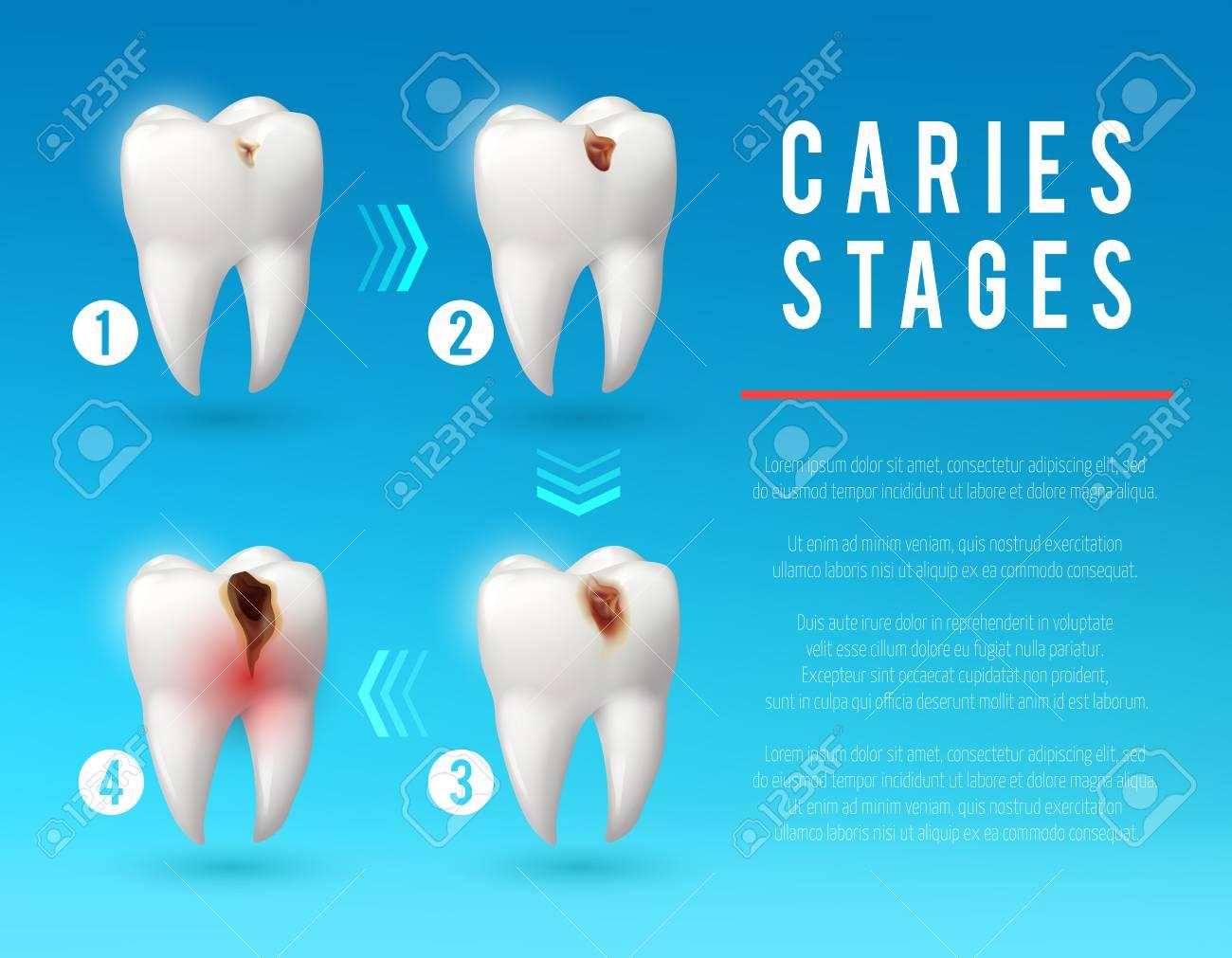 Póster 3d De Caries Dental Del Desarrollo De Caries Dental ...