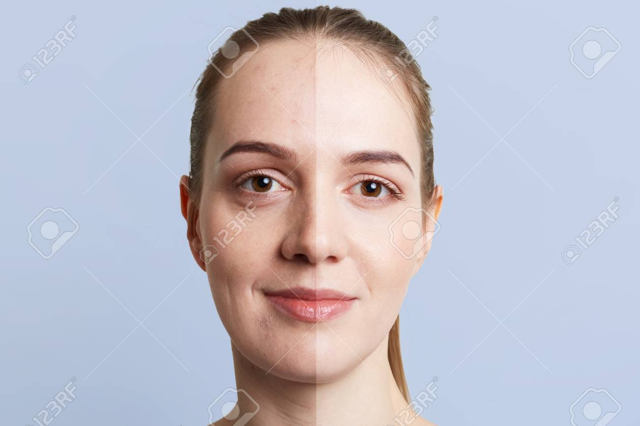 Close up portrait of woman`s face divided into two parts: healthy pure skin and unhealthy with blackheads, contrast between two skins. Facial treatment, cosmetology, medicine and beauty concept - 108066884