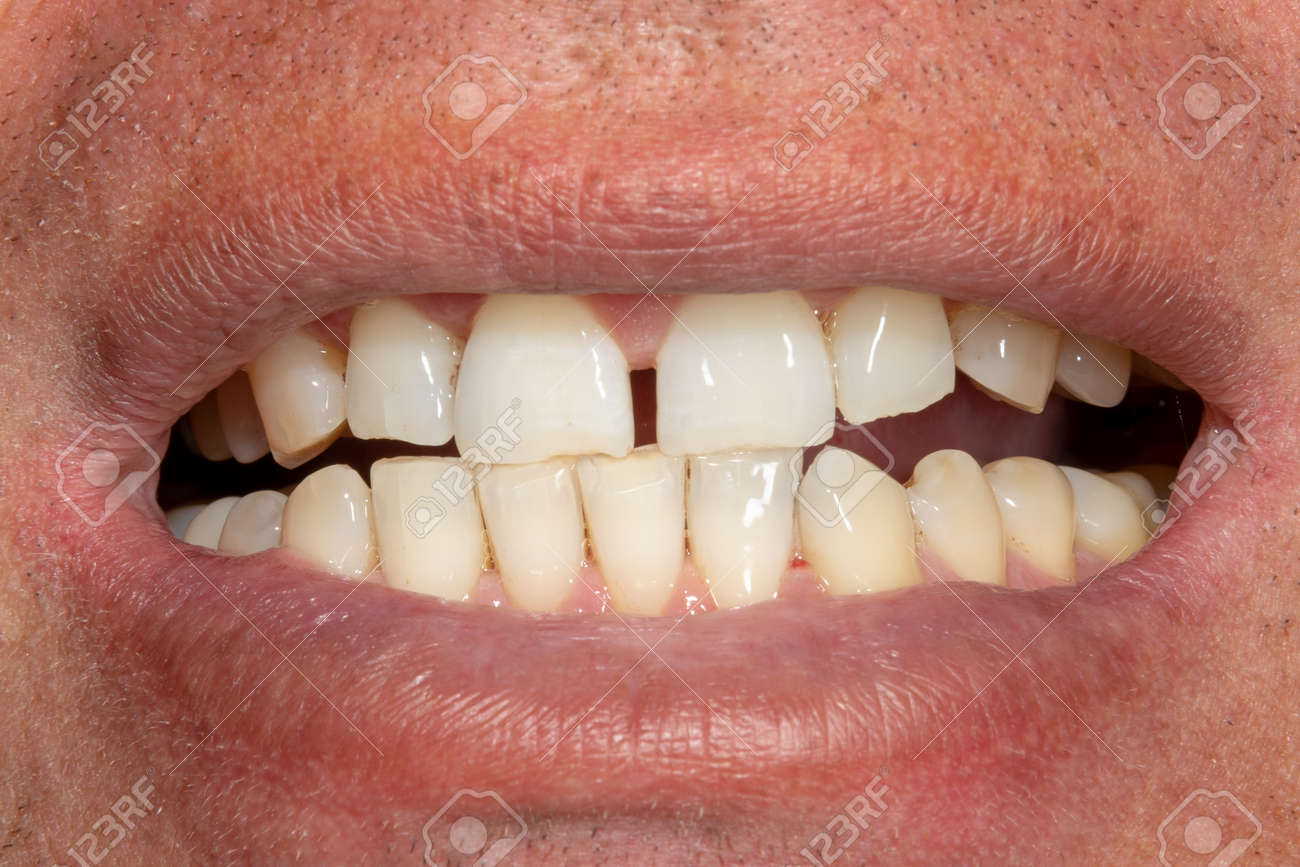 the teeth close-up after hygiene and bleaching. Man's face and smile - 123248534