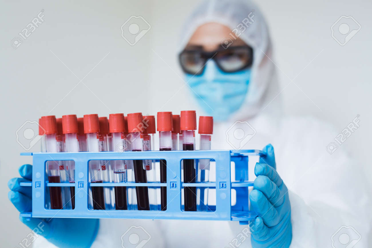 Coronavirus analysis concept. Medical worker holding blood samples rack in the laboratory with test for Covid-19. - 160650303