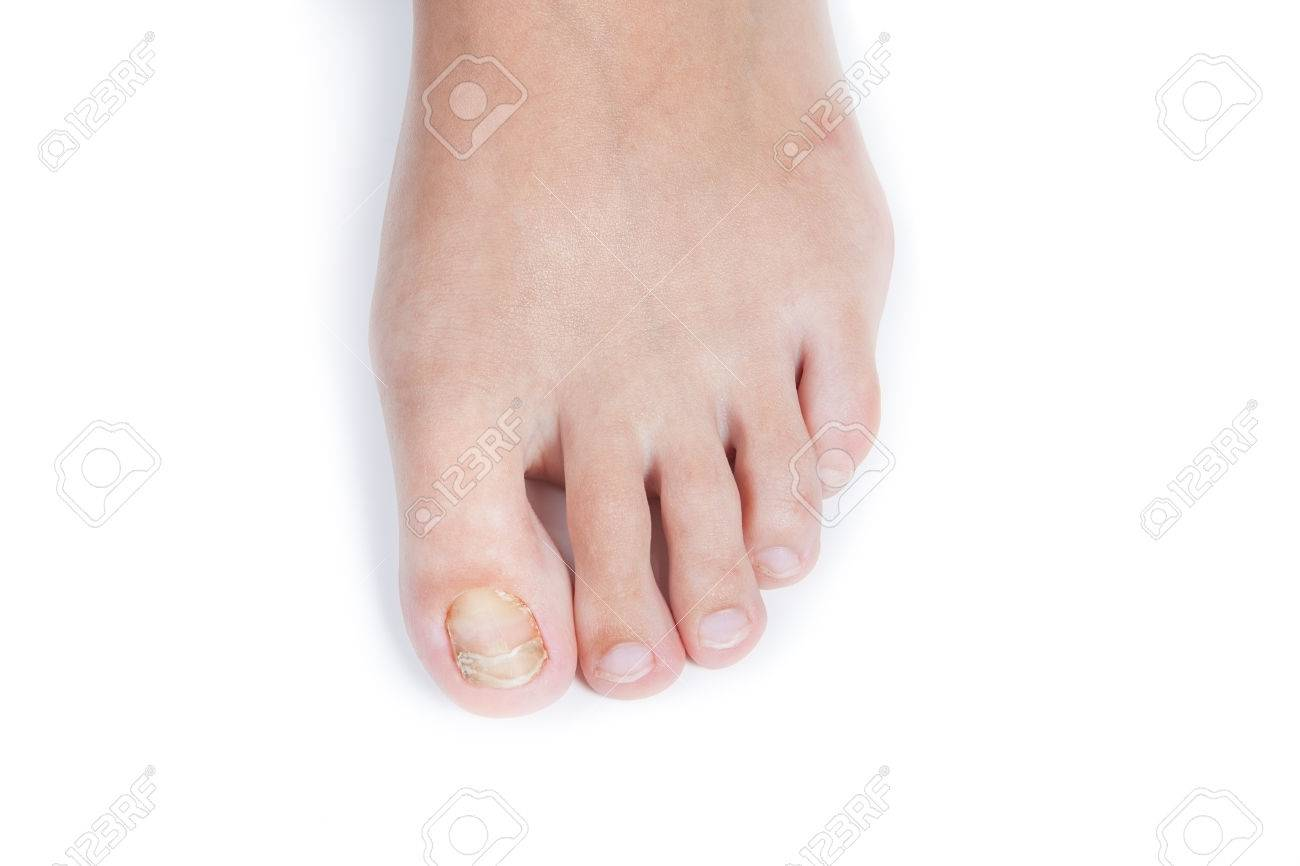 Nail Fungus On Female Finger. Stock Photo, Picture And Royalty Free ...
