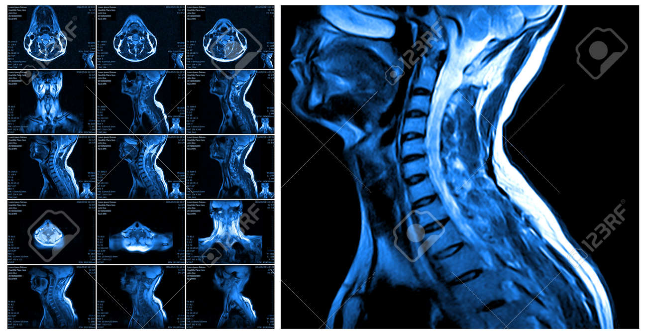 Magnetic resonance imaging of the cervical spine. MRI vertebral discs in different views - 59587371