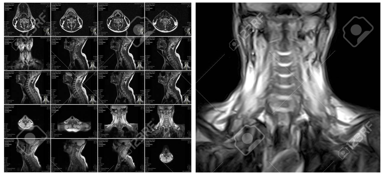 Magnetic resonance imaging of the cervical spine. MRI vertebral..