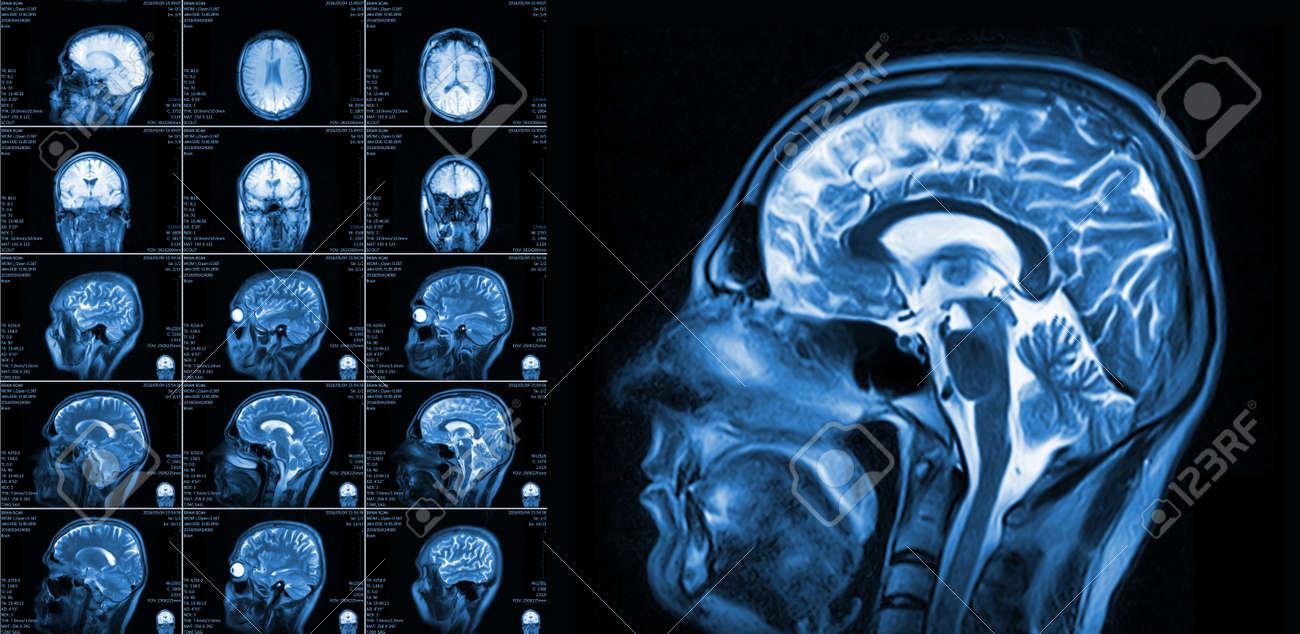 Die Magnetresonanztomographie Des Gehirns Ohne Sichtbare ...
