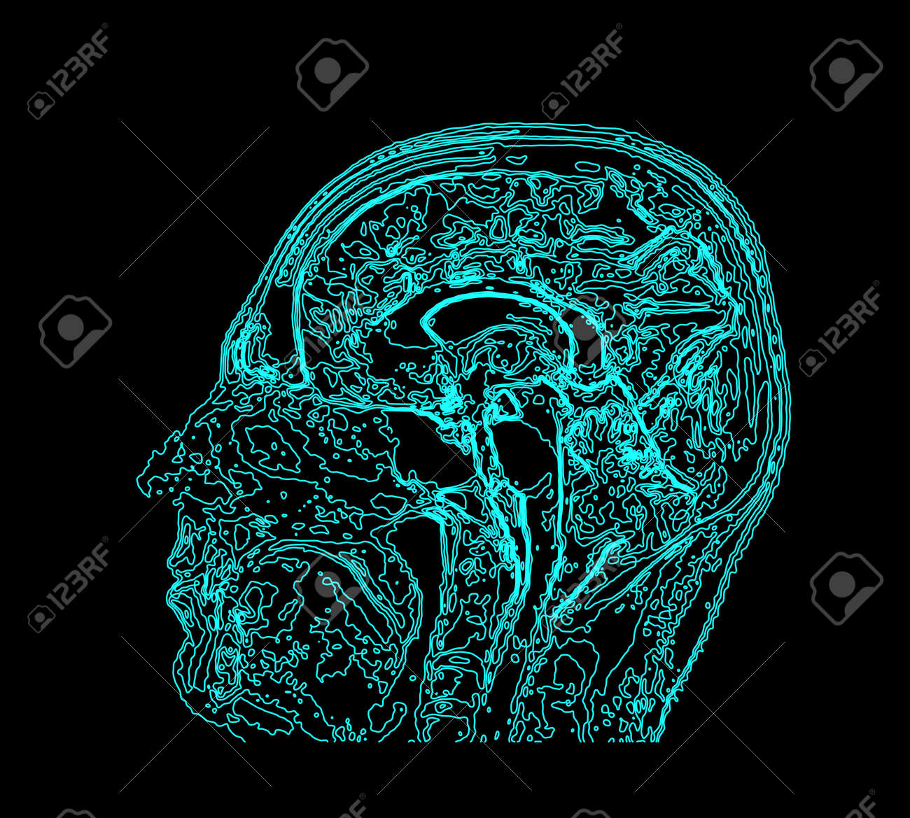 Topographic Map Mri Of The Human Brain Royalty Free Cliparts