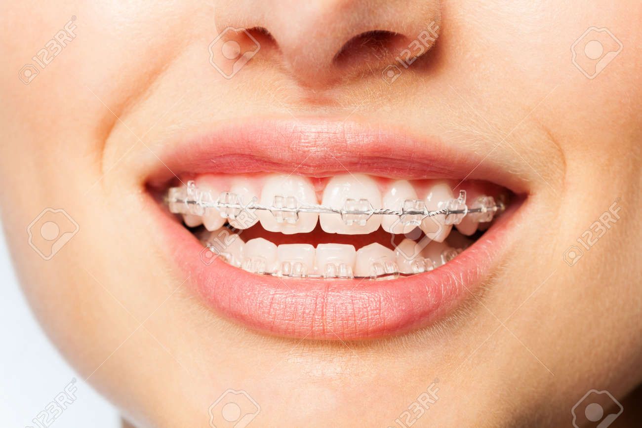 Healthy smile woman with clear brackets - 90241822