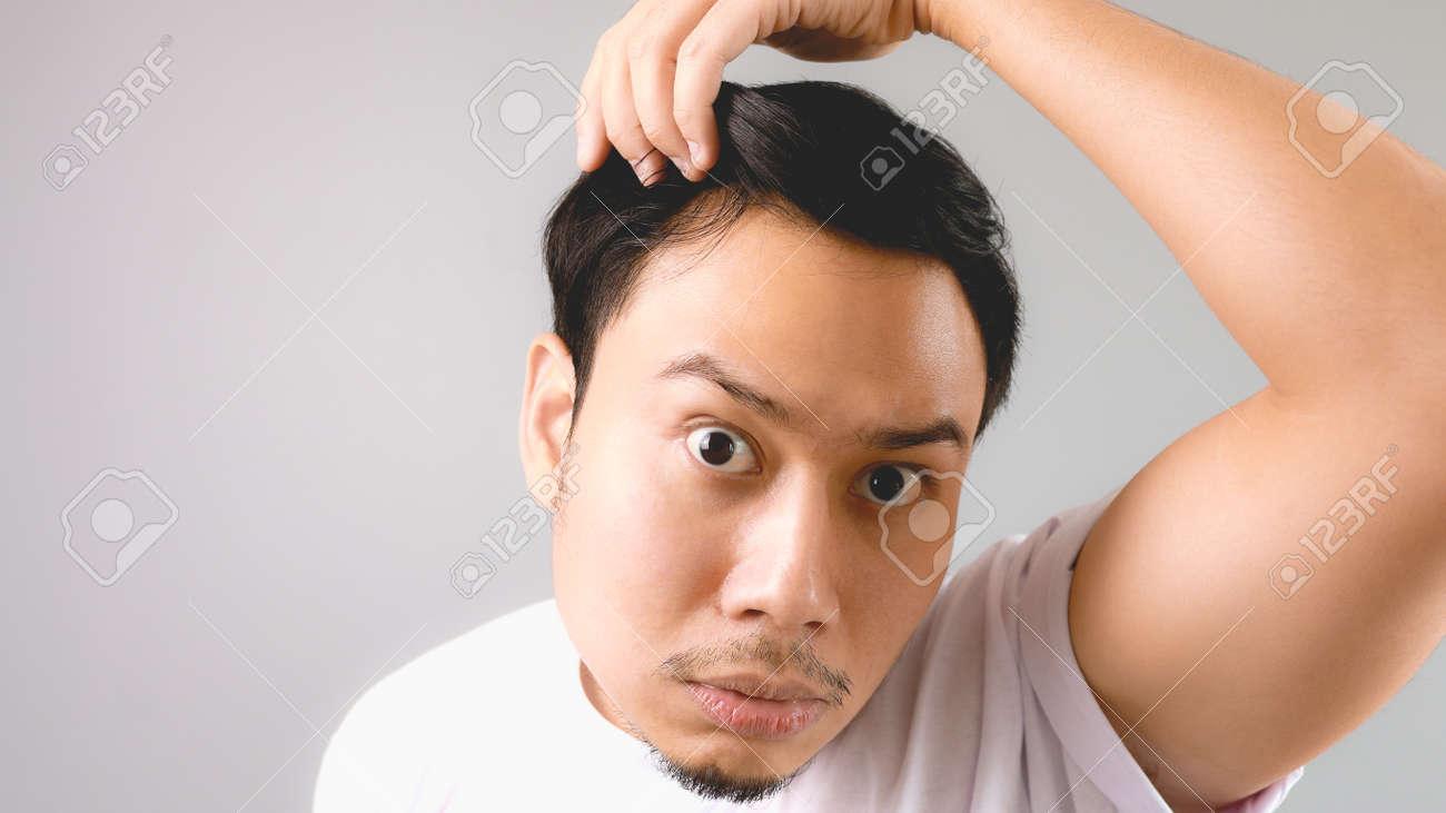 Haare fallen aus mann