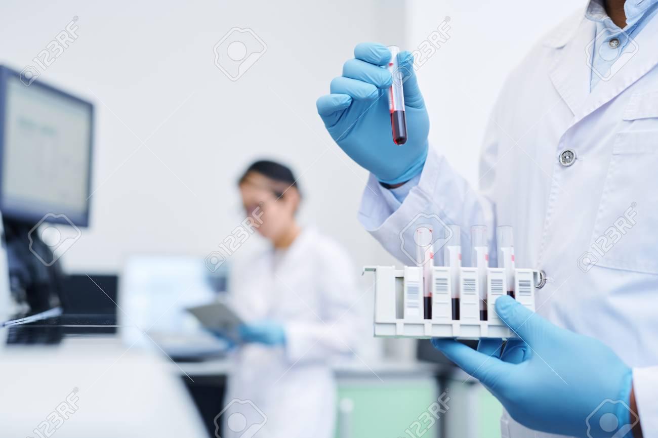 Preparing medical sample for virus research - 125415915