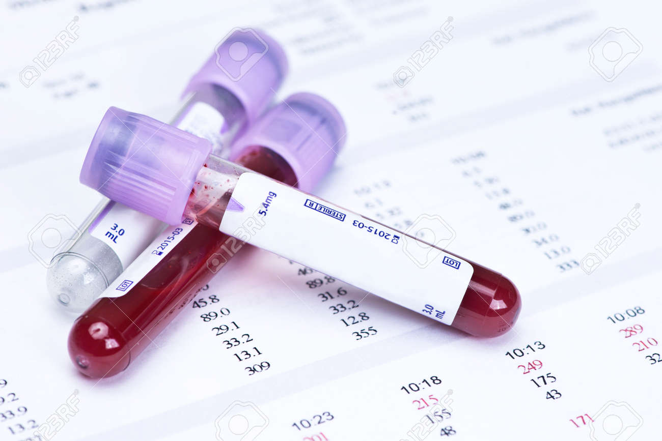 Hematology blood analysis report with lavender color blood sample hematology blood analysis report with lavender color blood sample collection tubes banque dimages nvjuhfo Image collections