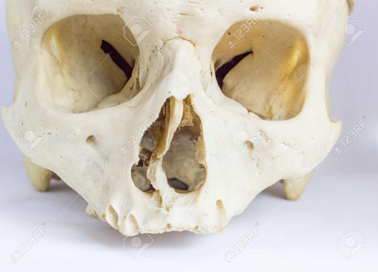 Close Up Macro View Of Human Skull Bone Showing The Anatomy Of