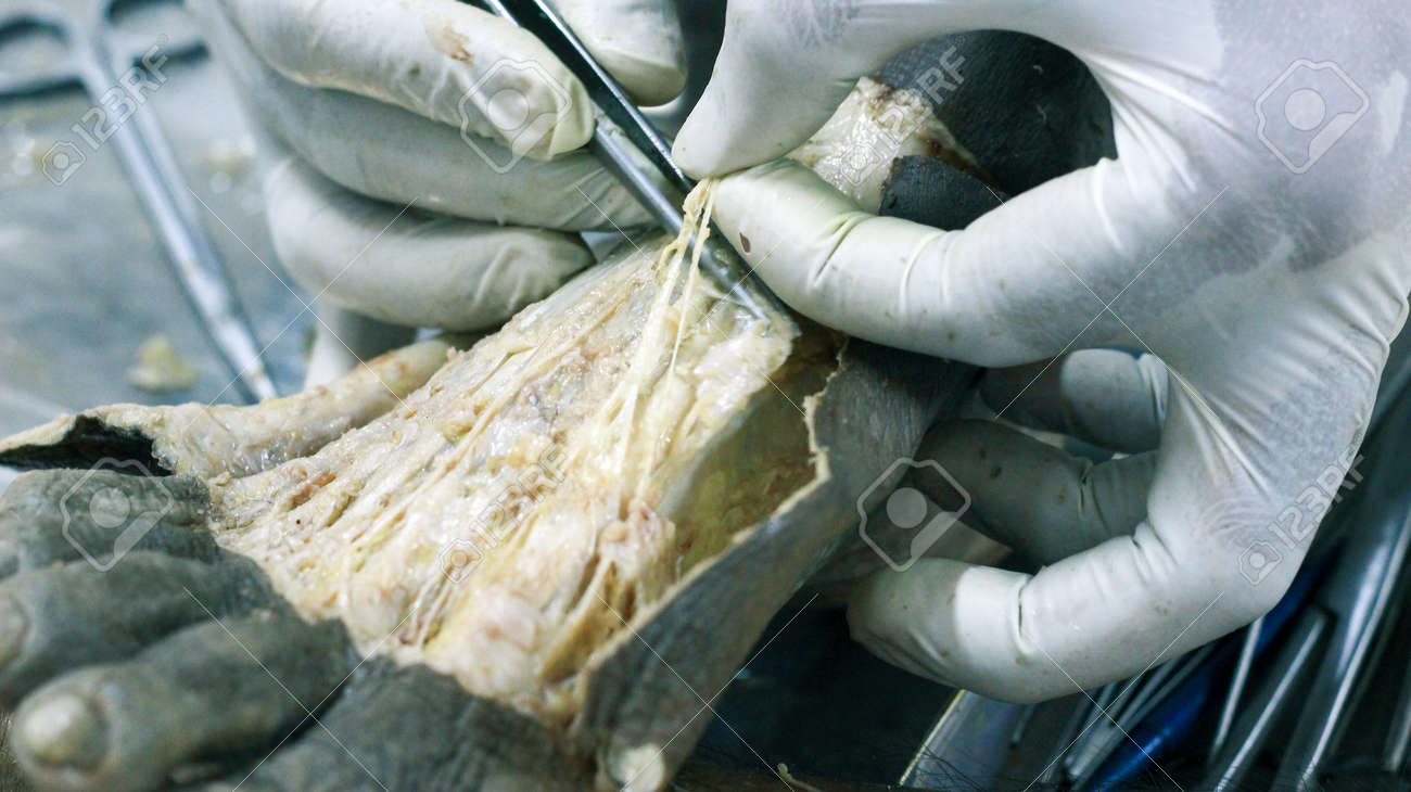 Anatomy Dissection Of A Cadaver Showing Dorsum Of Foot Using.. Stock ...