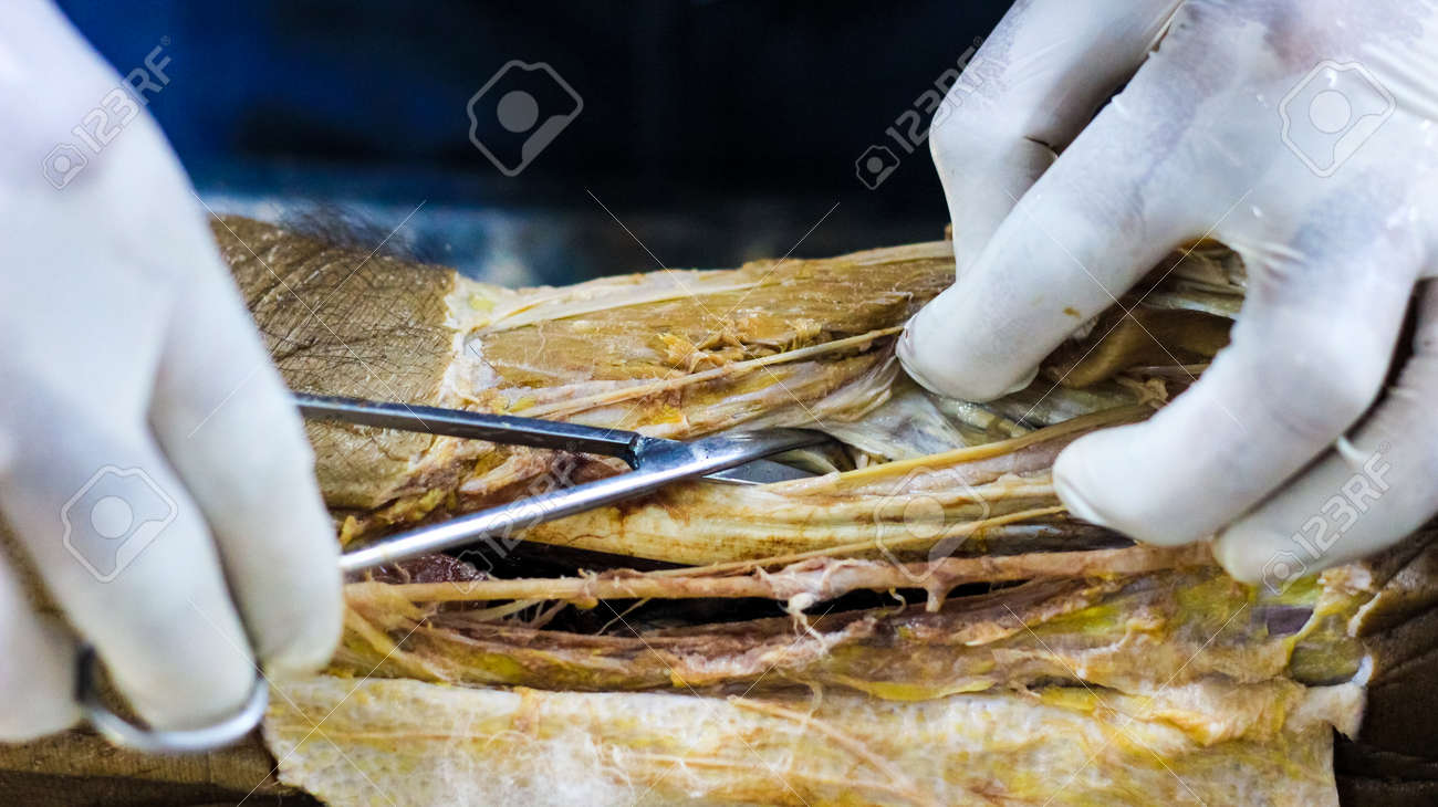 Anatomy Dissection Of A Cadaver Showing Adductor Canal Using.. Stock ...