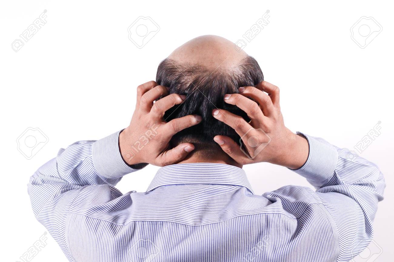 bald businessman with his head on scalp view from behind with white background - 112588217