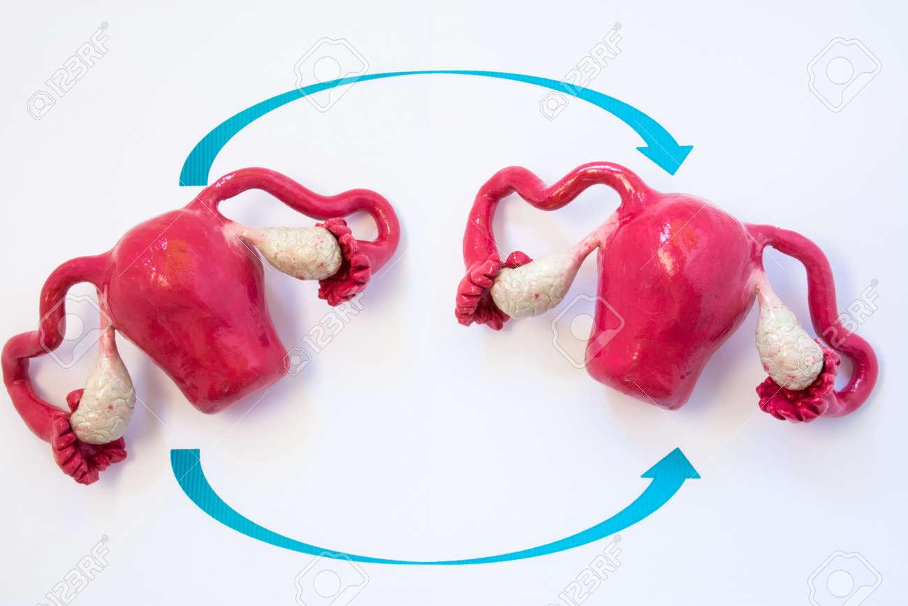 Uterustransplantations-Konzeptfoto. Zwei Anatomische Modelle Der ...