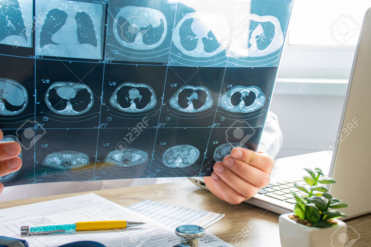Doctor at appointment inspects and examines ct scan of chest and abdominal cavity. Concept photo on diagnosis of diseases in pulmonology, lung pathology, inflammatory diseases of bronchi, tuberculosis - 138884162