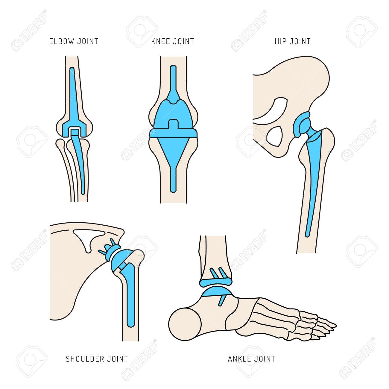 Ilustración Médica De La Implantación De Las Articulaciones óseas En ...