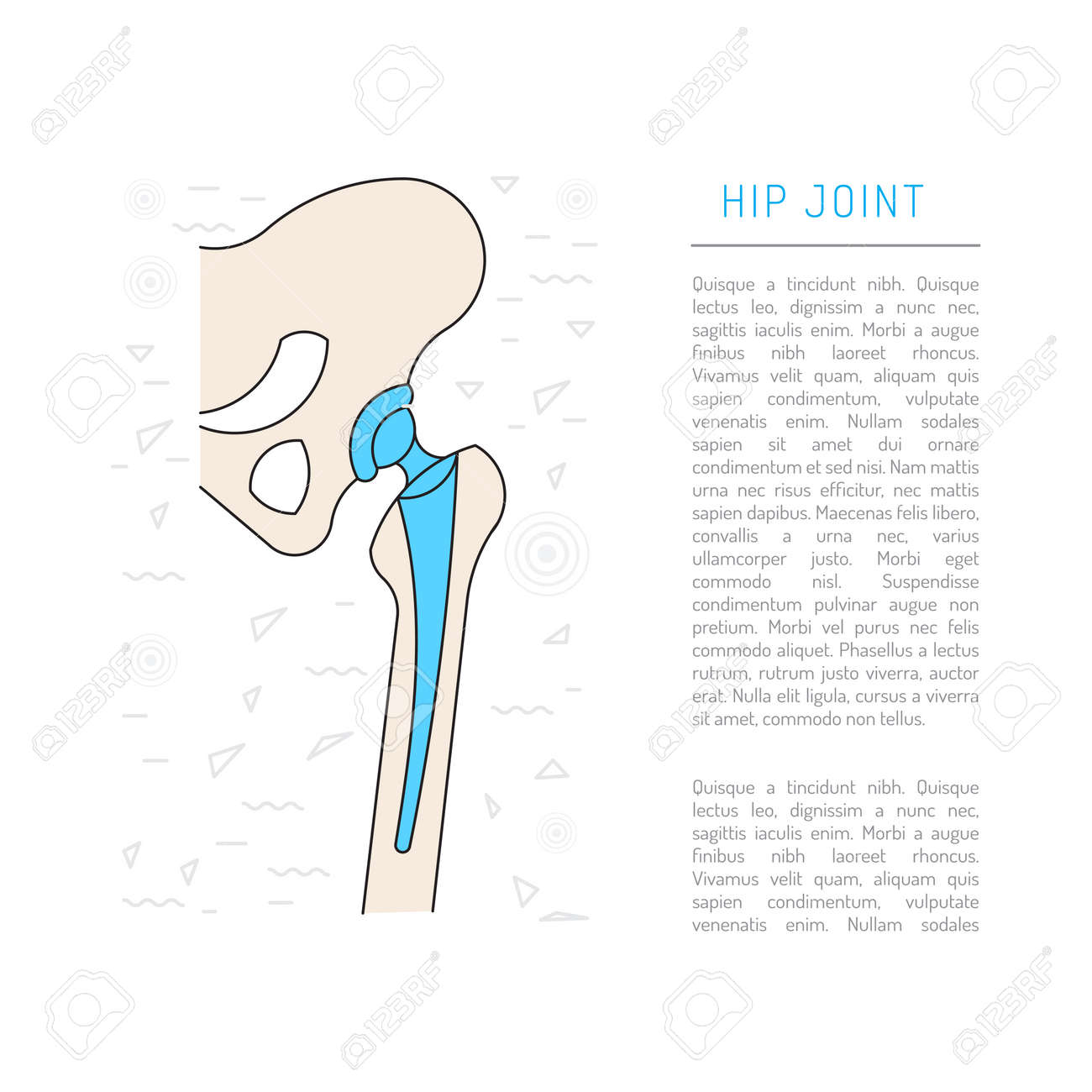 Medical Illustration Of The Structure Of The Bones Of The Hip
