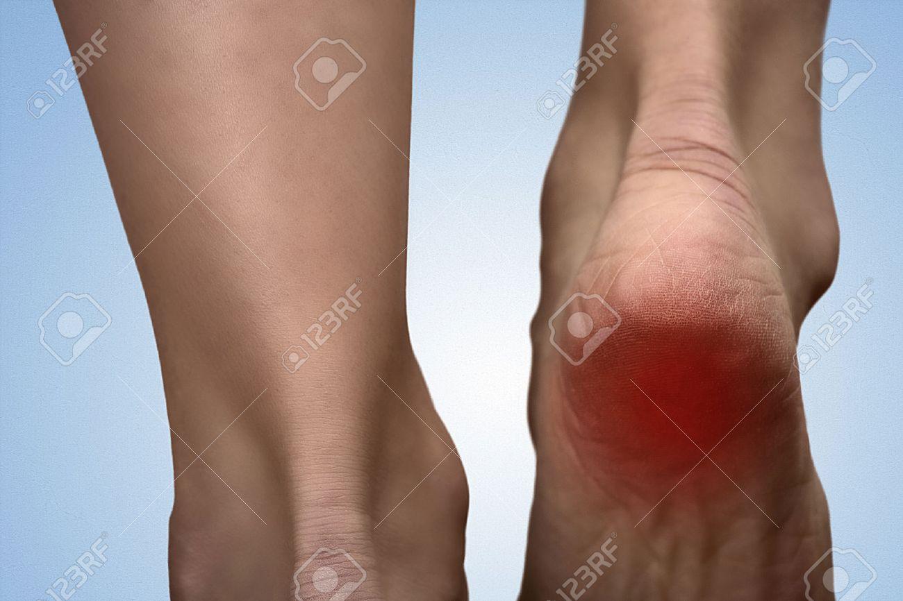 Mancha en el pie sin dolor