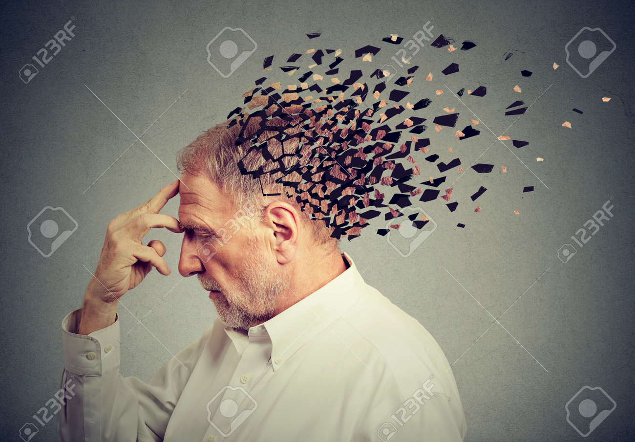 Memory loss due to dementia. Senior man losing parts of head as symbol of decreased mind function. - 91608298