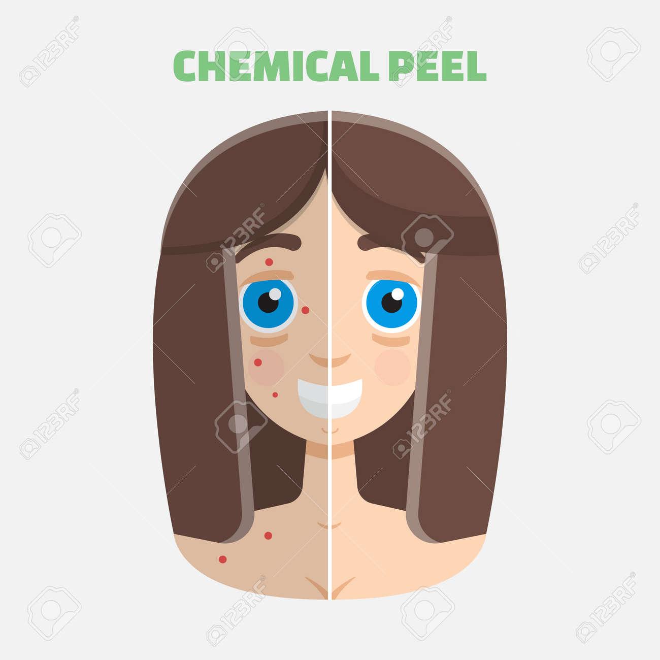 Chemical peel - 60996182
