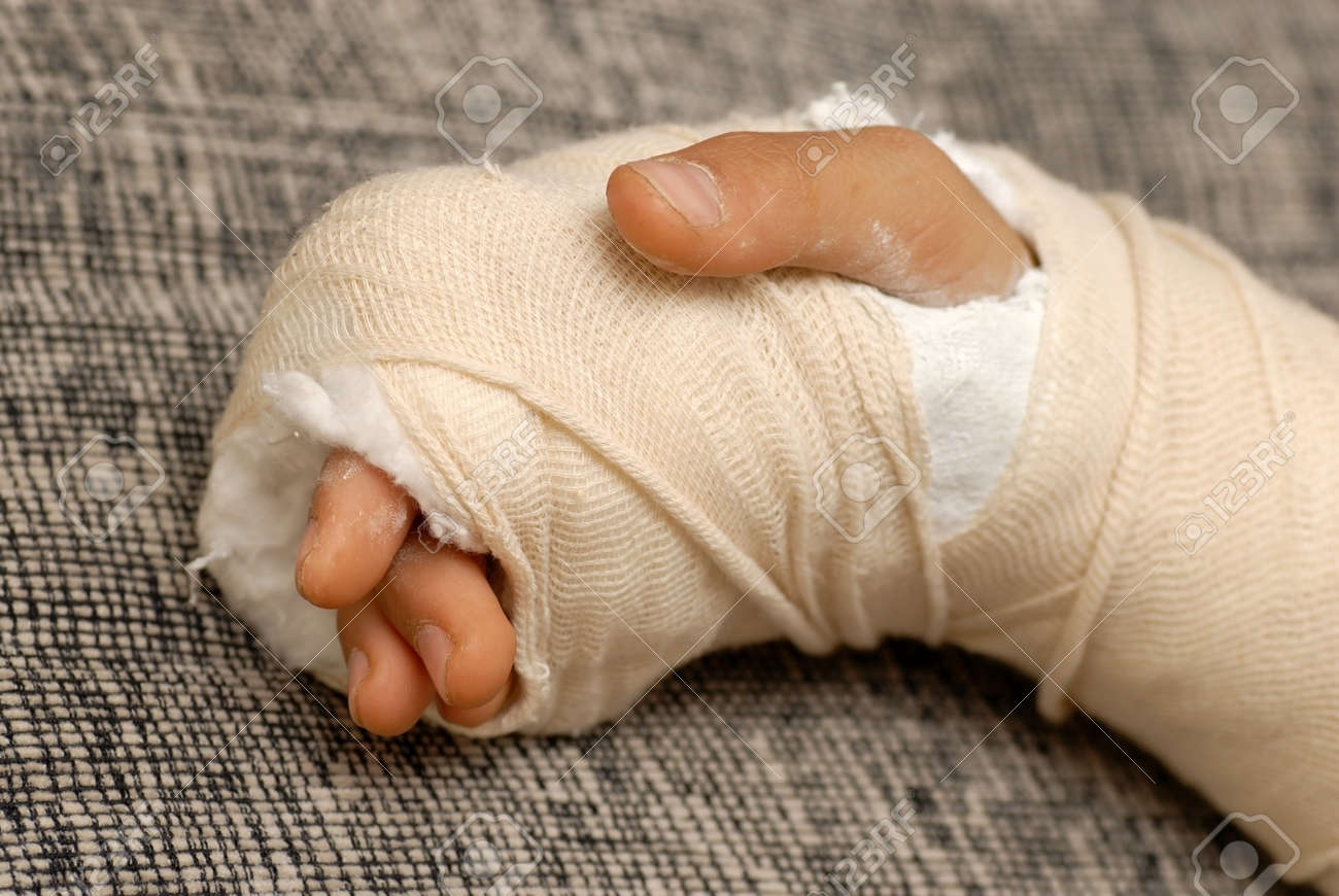 broken arm bone in a cast and bandages over gray background Stock Photo - 12021408
