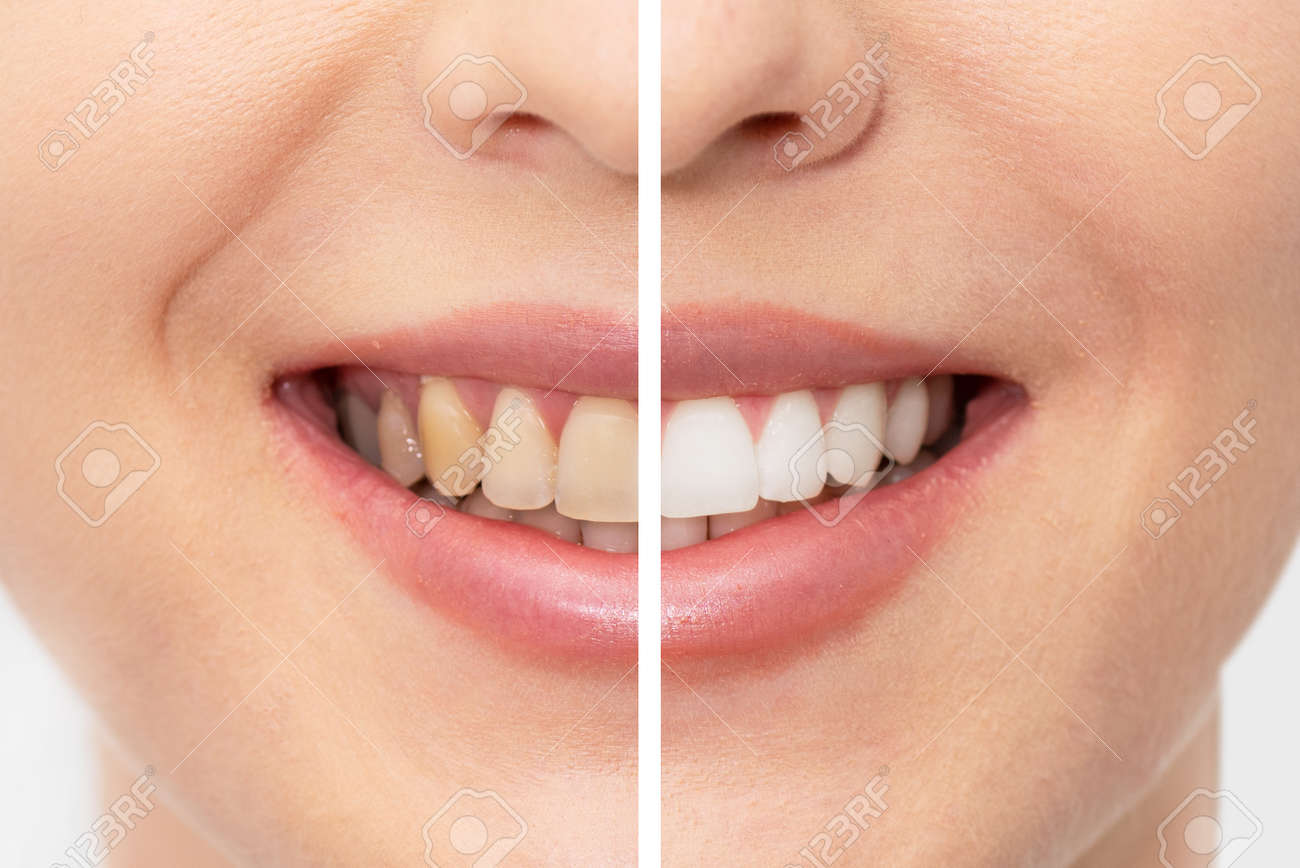 Teeth before and after whitening. Dental care concept - 153667458