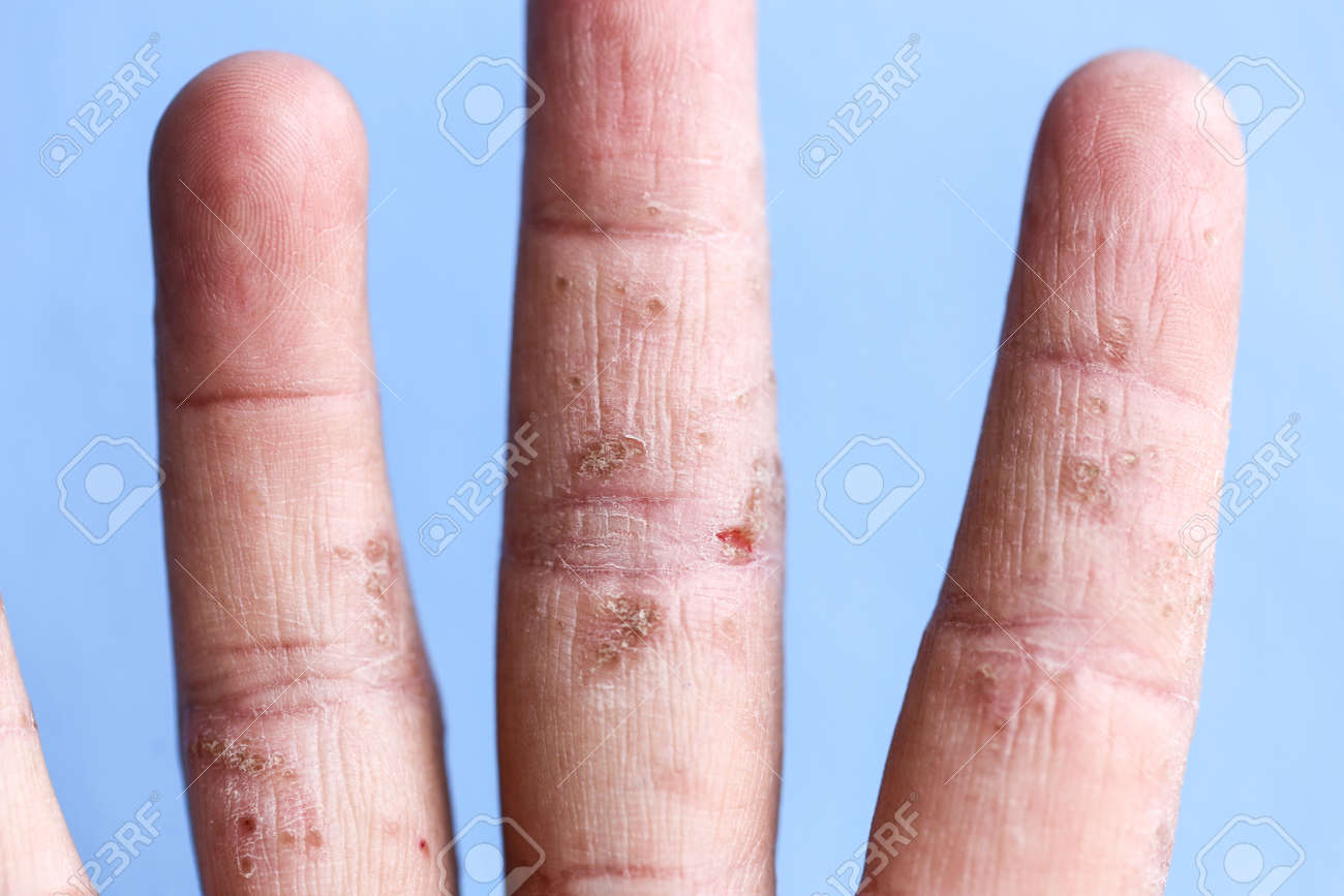 A physical of Atopic dermatitis (AD), also known as atopic eczema, is a type of inflammation of the skin (dermatitis). - 131004621