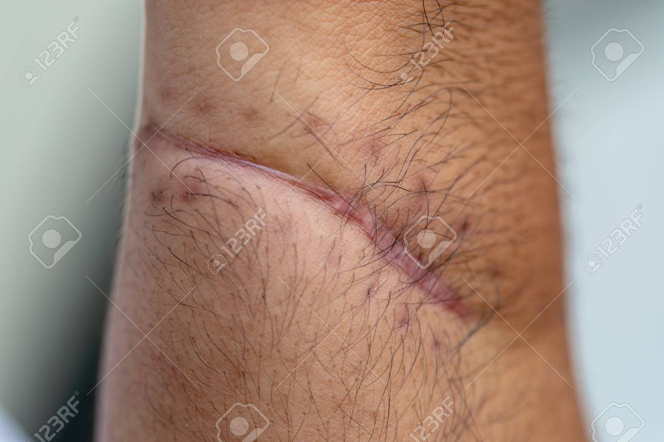 A scar is an area of fibrous tissue that replaces normal skin after an injury on skin. - 121097845