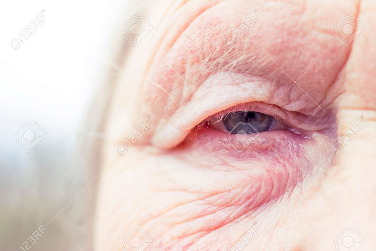Close-up. Woman aged. Eye in the center of the frame. The pupil has soft focus, the concept of poor eyesight, everything is blurry. - 138706439