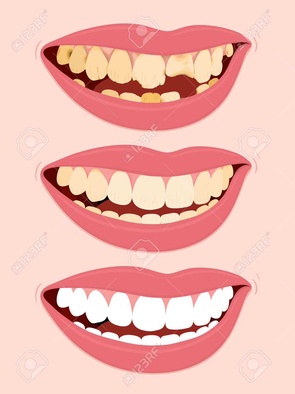 Progressive Stages Of Tooth Decay, illustration of open female