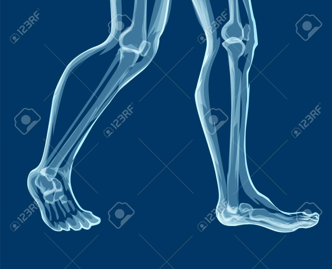 Huesos De La Pierna Humana, Rayos X. Ilustración Vectorial Mecial ...