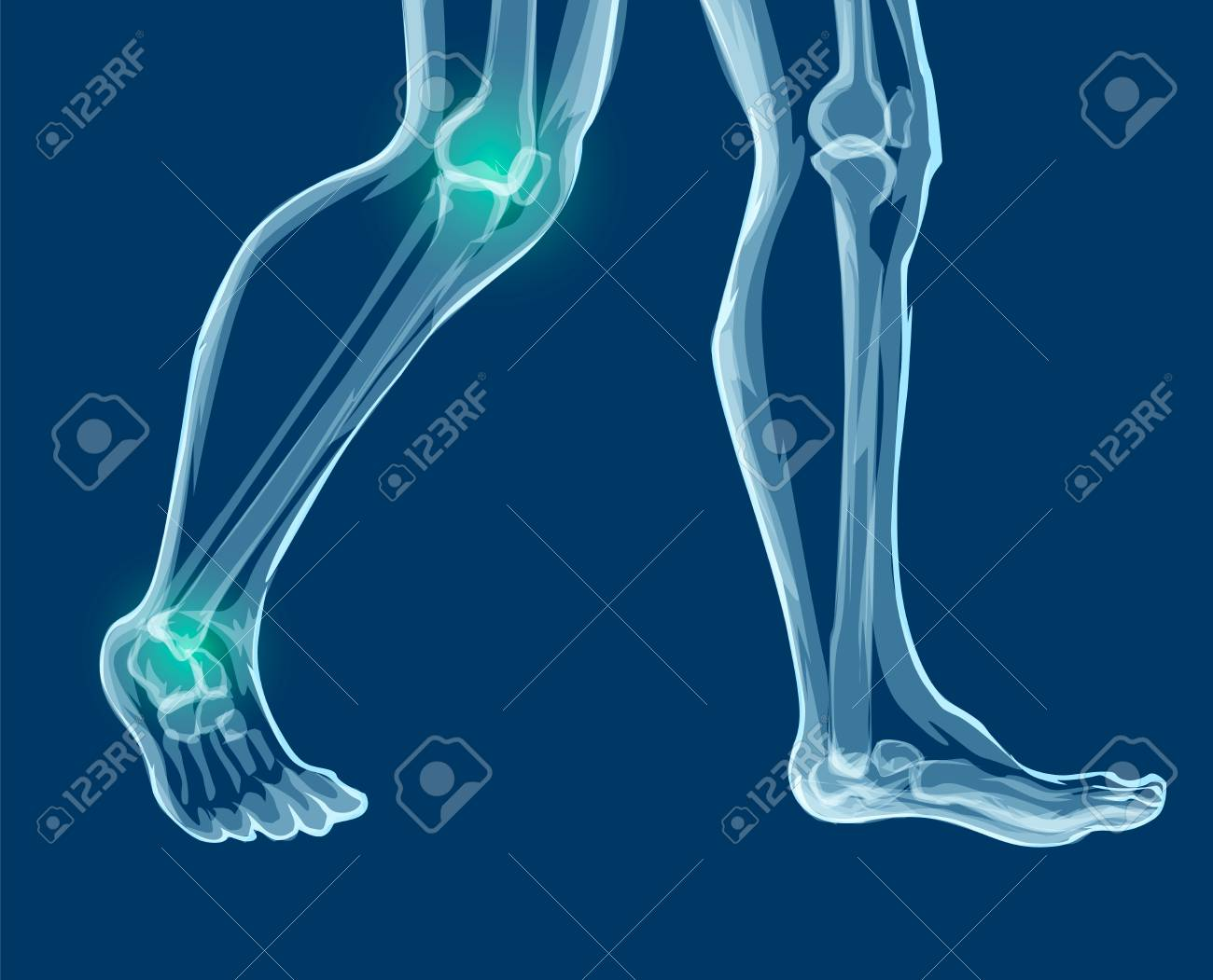 Human Leg Bones And Joints X Rays Mecial Vector Illustration