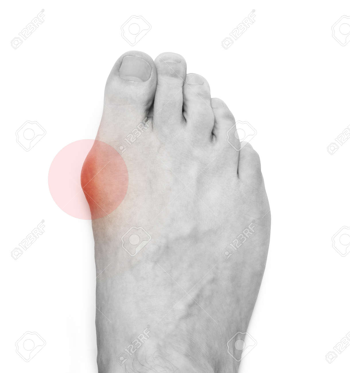 Varus valgus and Hallux valgus, bunion on white background. With clipping path - 170242731