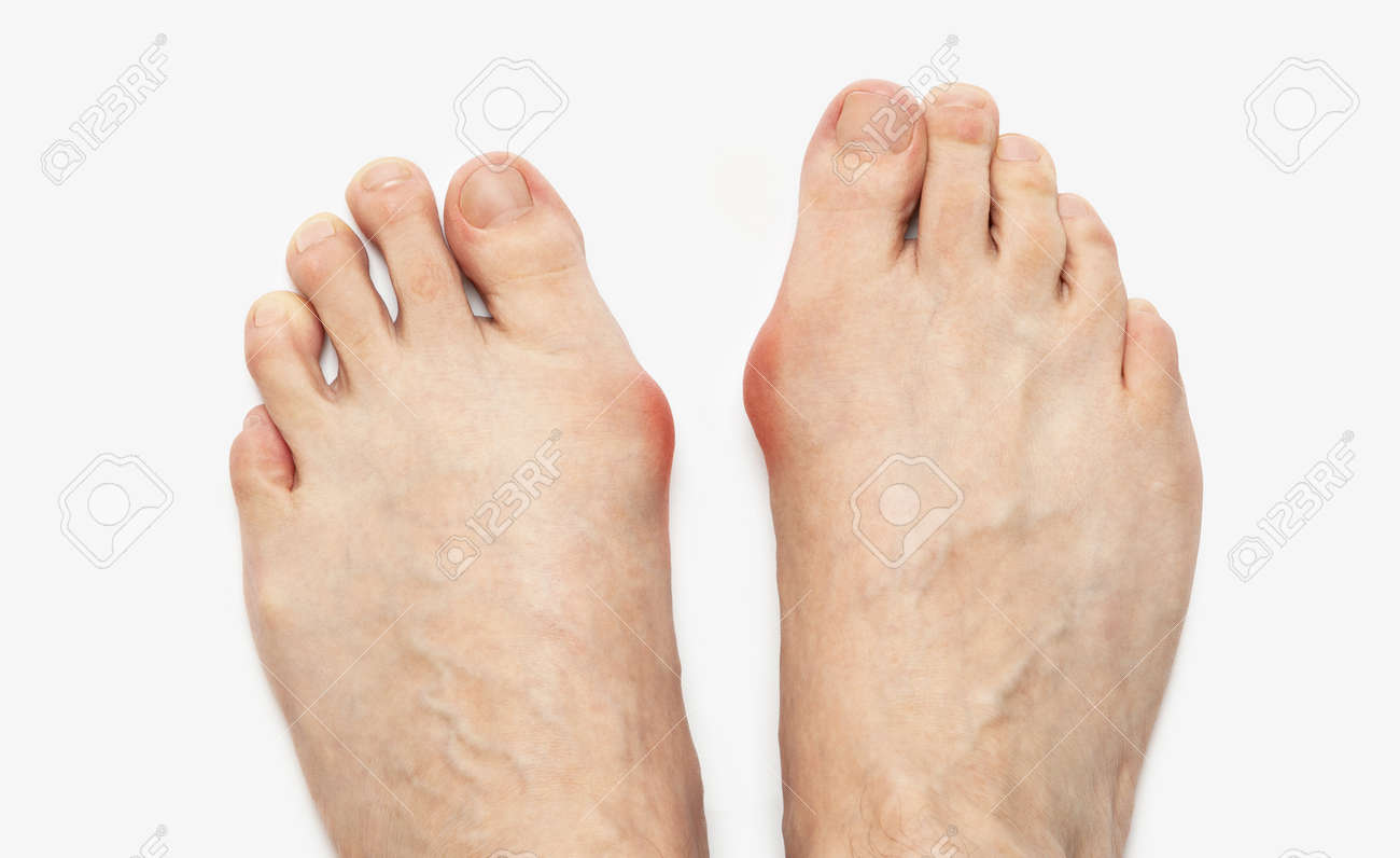 Varus valgus and Hallux valgus, bunion on white background. With clipping path - 170242732