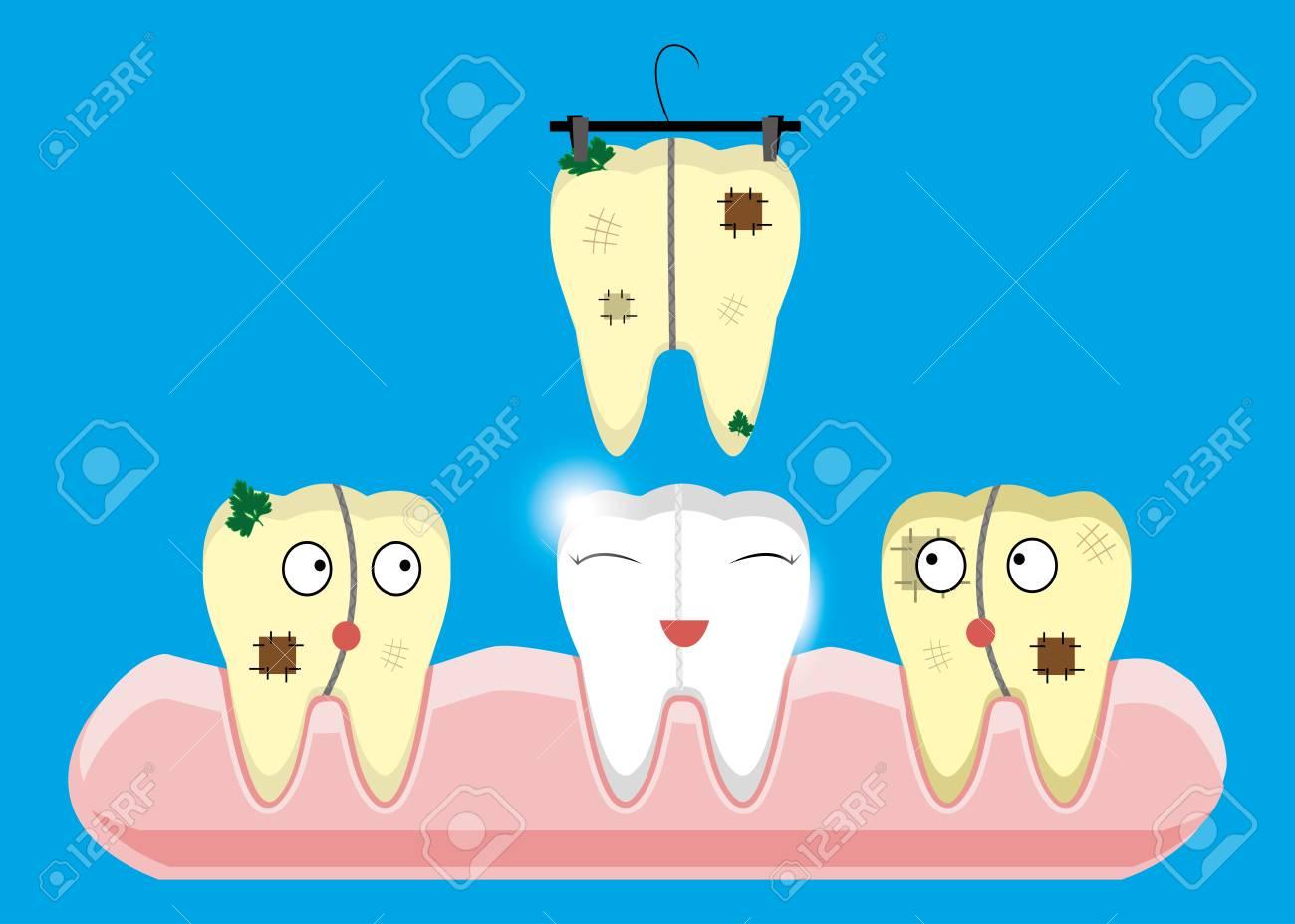 歯のクリーニングとホワイトニングの概念のセットですスケーラ